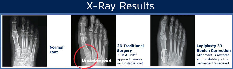Text Graphic that shows X-Ray Results of a normal foot, 2D traditional surgery, and Lapiplasty 3D Bunion Correction| Neuroscience and Spine Associates