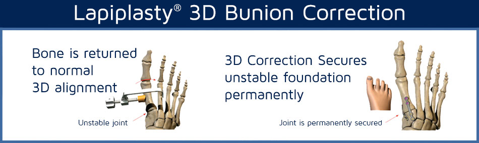 Text Graphic that says: Lapiplasty 3D Bunion Correction | Neuroscience and Spine Associates